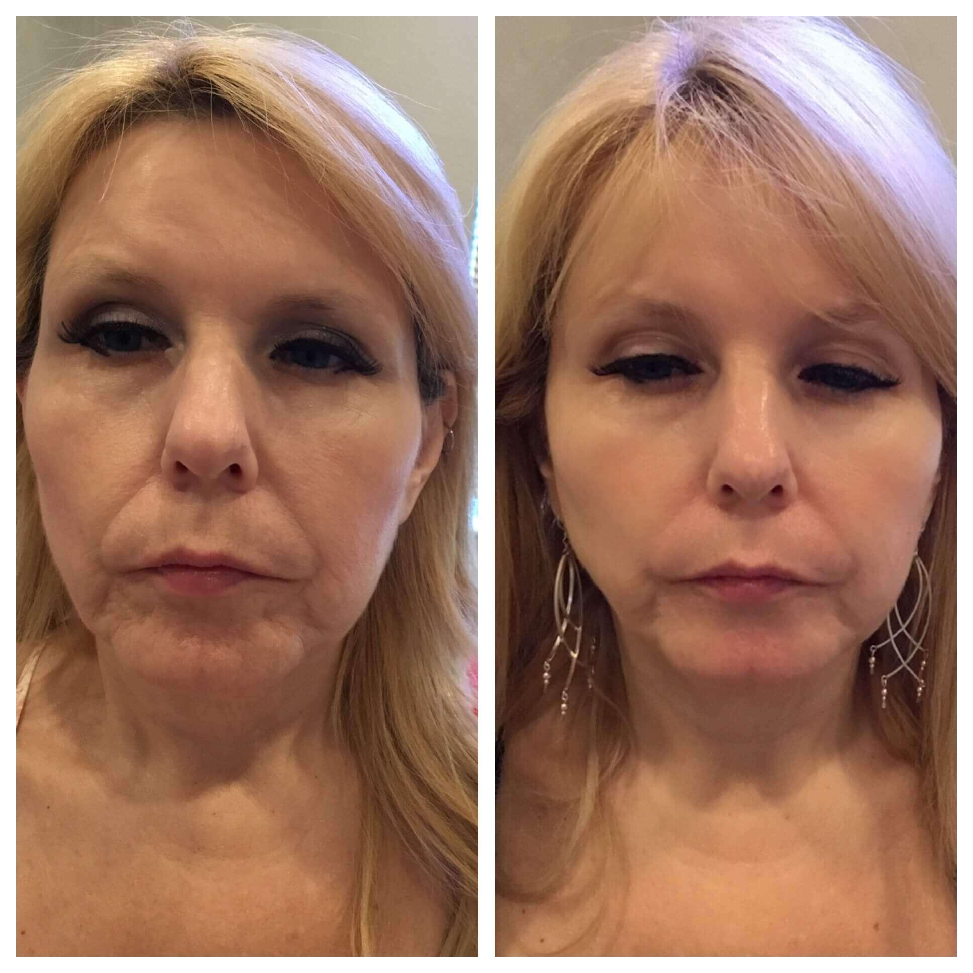 İp Askı Yöntemiyle Ameliyatsız Yüz Gerdirme Tedavisi Öncesi Sonrası Fotağrafları