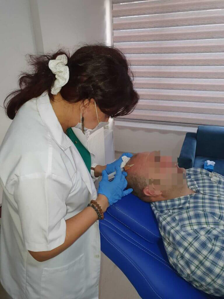 Saç PRP Tedavisi - Saç Mezoterapisi - Erkek